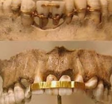 Egypt Tourism's Photos Dentistry-in-ancient-Egypt-2