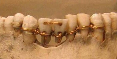 Dentistry in Ancient Egypt